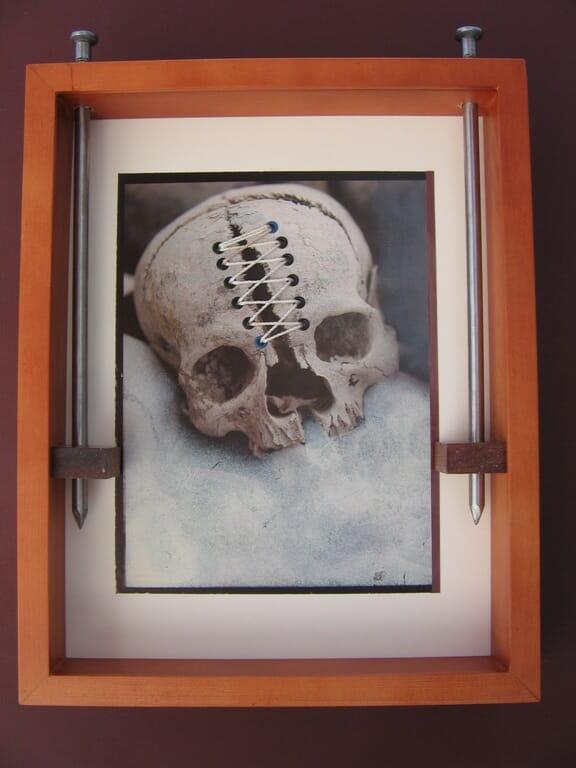 repaired skull, bob privitt, mixed media, assemblage