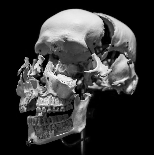 exploded skull art dave zeck