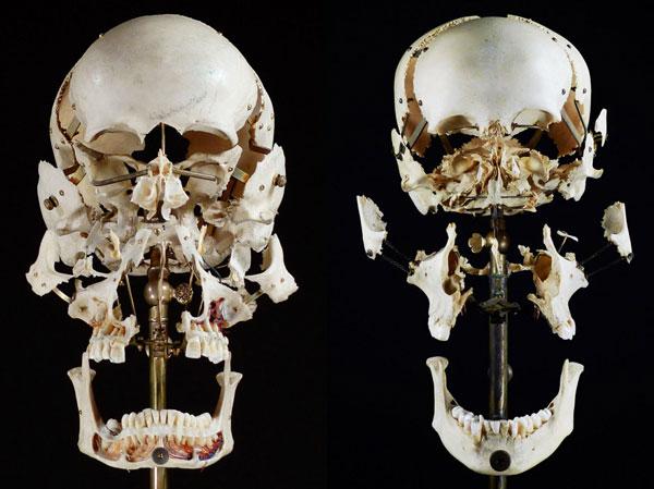 exploded skull art sergio royzen