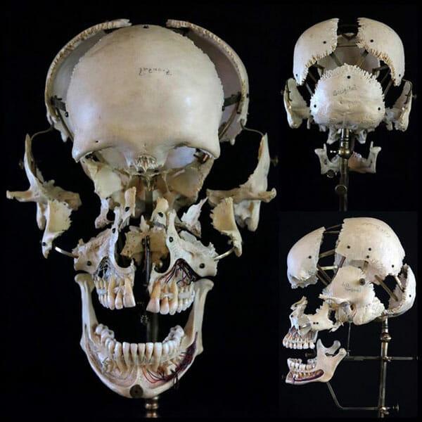 exploded skull art tim kern